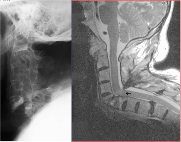 osteoporotisk sammenfald